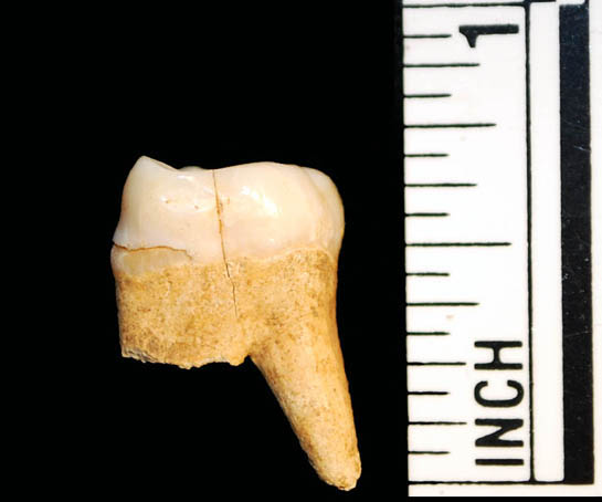 FF Tooth 2