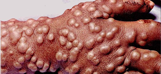 Smallpox pustules on hand